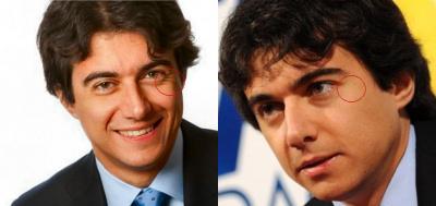 Massimo Costa e le rughe