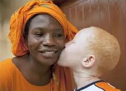 Nasce un bambino bianco da una donna nigeriana al Policlinico